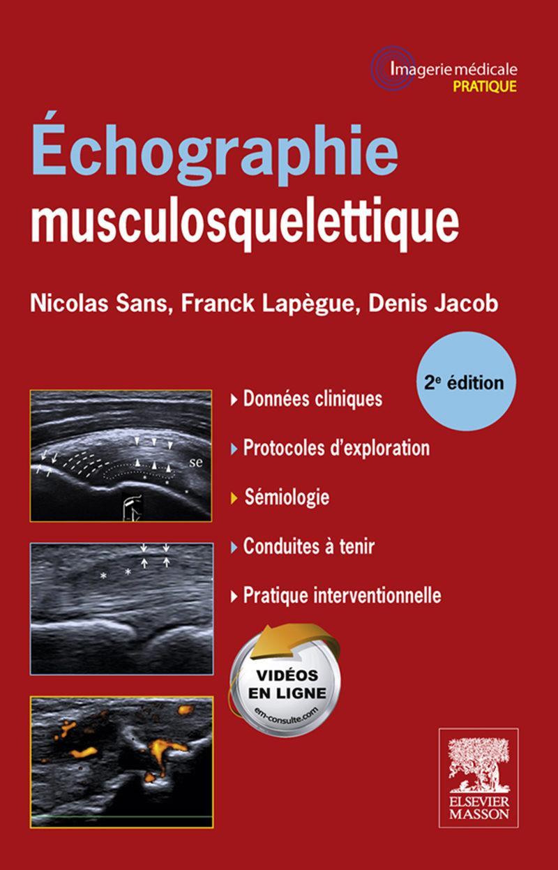 ECHOGRAPHIE MUSCULOSQUELETTIQUE EBOOK   FRANCK LAPÈGUE   Descargar ...