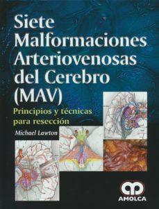 Descarga de la base de datos de libros de Amazon SIETE MALFORMACIONES ARTERIOVENOSAS DEL CEREBRO (MAV)