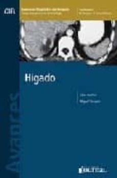 Descargar libro electrónico para móvil gratis AVANCES EN DIAGNOSTICO POR IMAGENES 1: HIGADO in Spanish PDF de MIGUEL E. STOOPEN