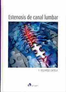 Libro de Kindle no descargando a iphone ESTENOSIS DE CANAL LUMBAR ePub PDB DJVU 9788415950752 (Spanish Edition)