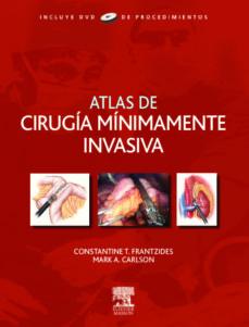Descargar libros de kindle gratis para iphone ATLAS DE CIRUGIA MINIMAMENTE INVASIVA