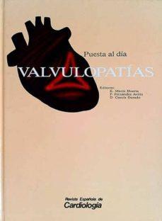 Mrnice.mx Valvulopatías Image